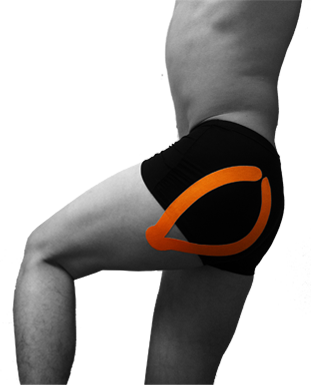 Kinesio_Taping_Hip_Pain